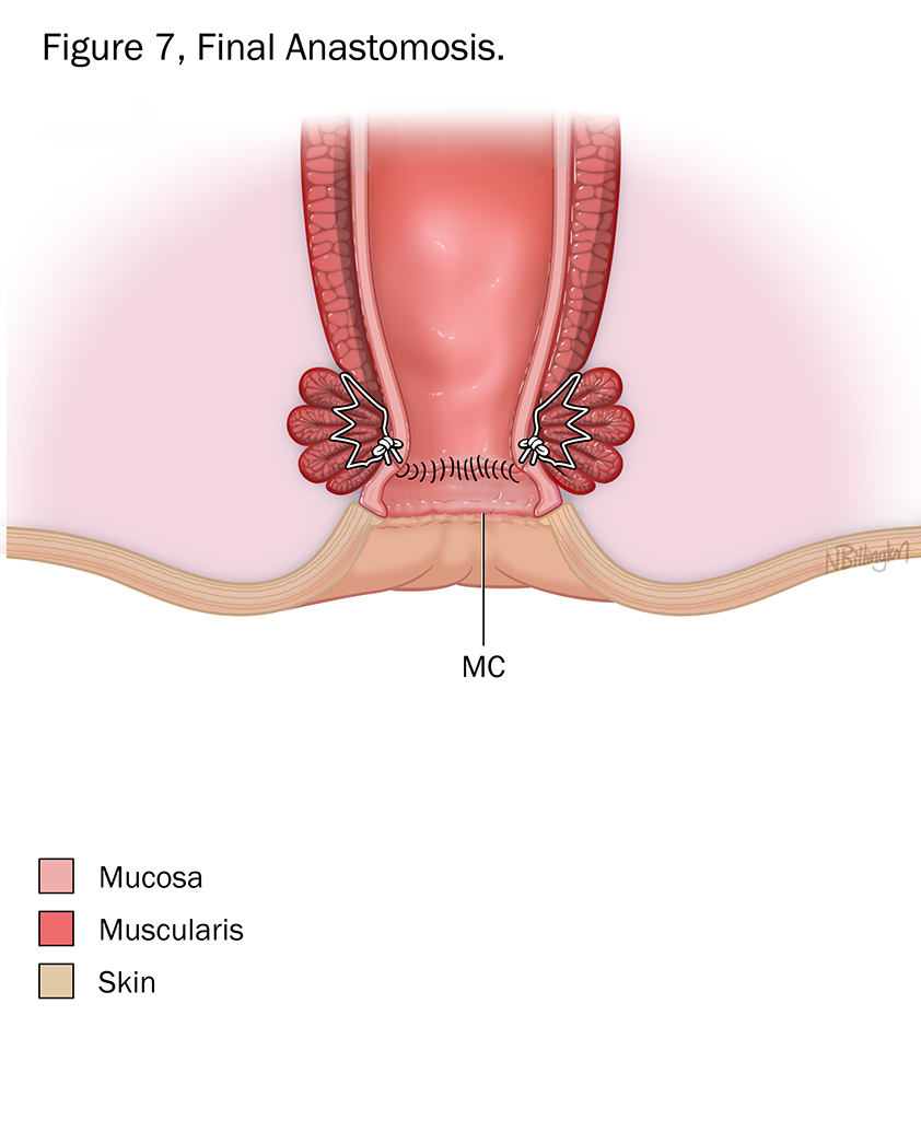 "Illustration of ""Final Anastomosis"""