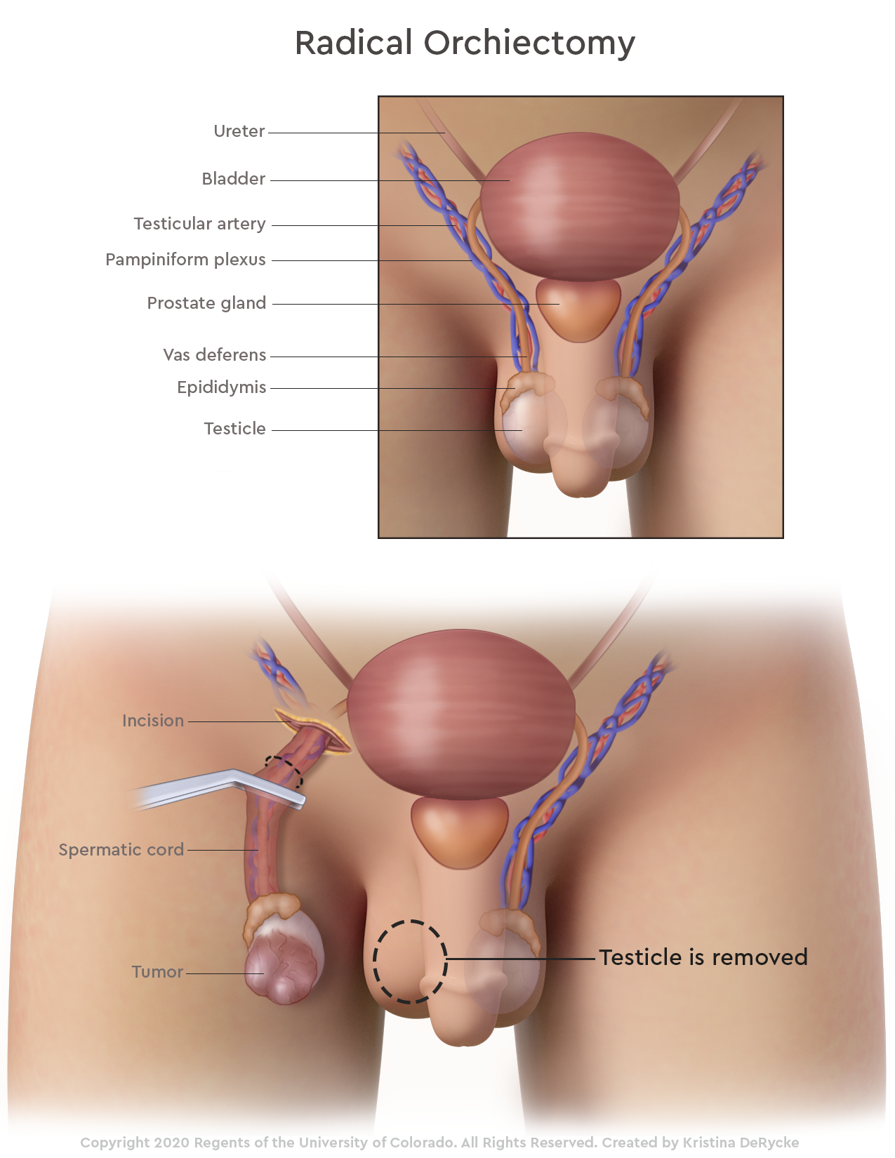 Effects of having one side testicle only Undescended testicle