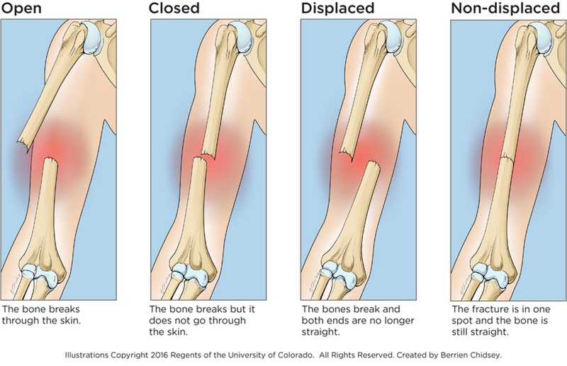 An illustration showing an open fracture that breaks through the skin, a closed fracture that happens when the bone breaks but doesn't go through the skin, a displaced fracture that happens when the bones breaks and the ends are no longer straight, and a non-displaced fracture that happens when the fracture is in one spot and the bone is still straight.