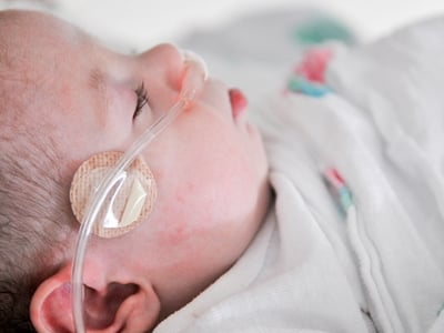 Close-up of a baby with a tube helping it breathe.
