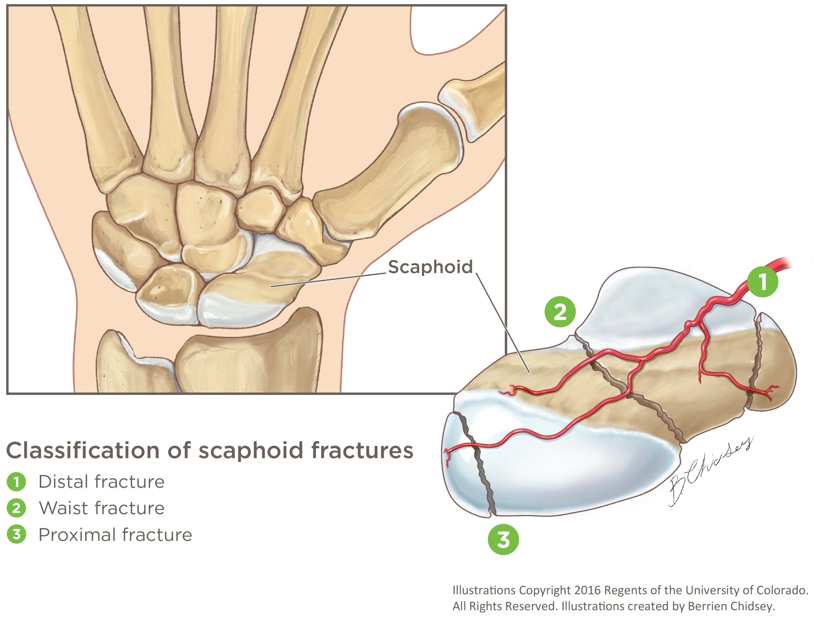A graphic illustration of three types of scaphoid fractures: distal, waist and proximal.