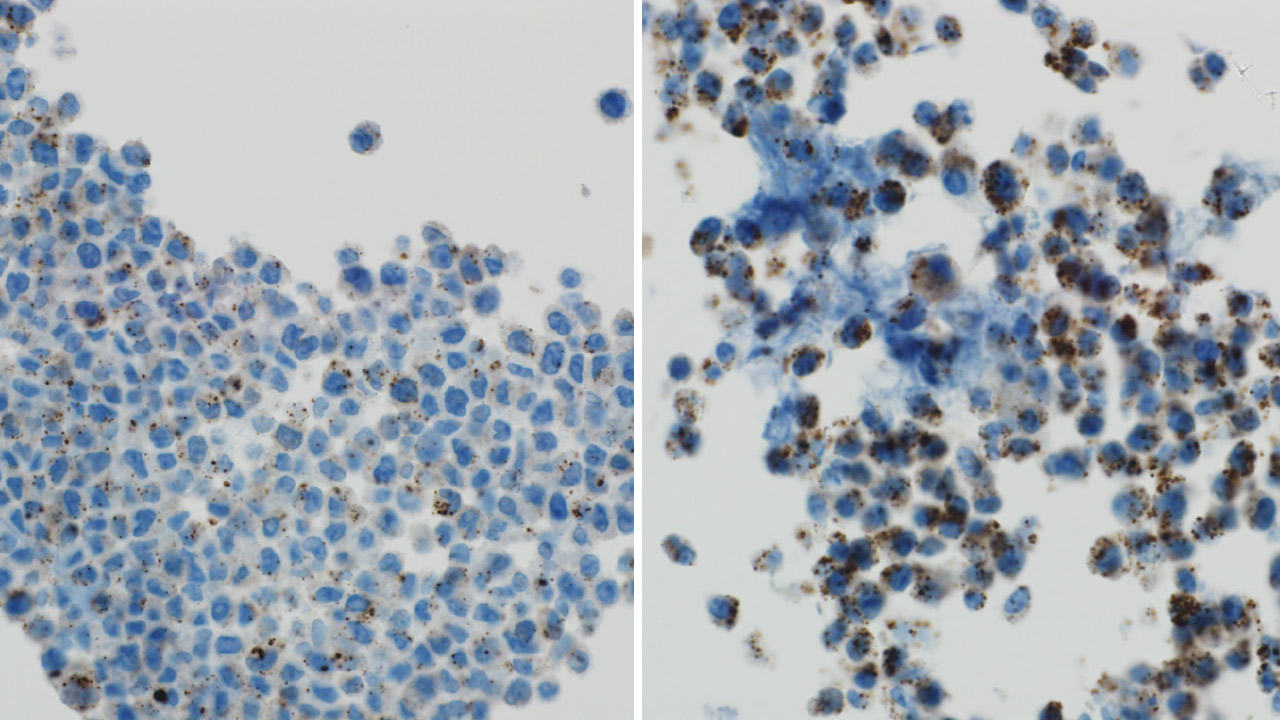 Side by side view of tumor cells with autophagy