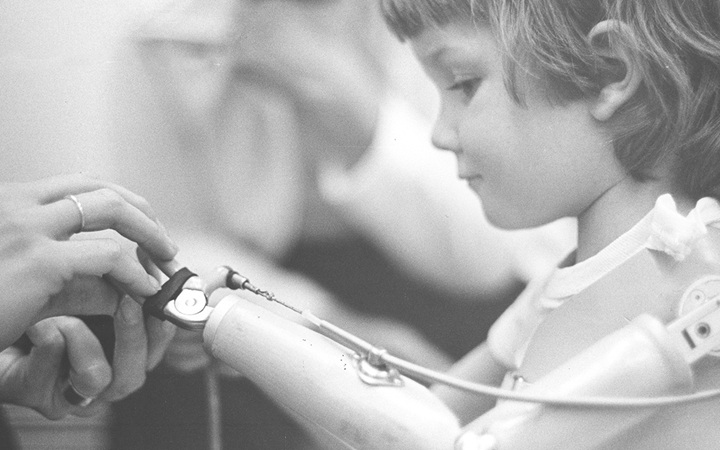 A child receives occupational therapy in 1976