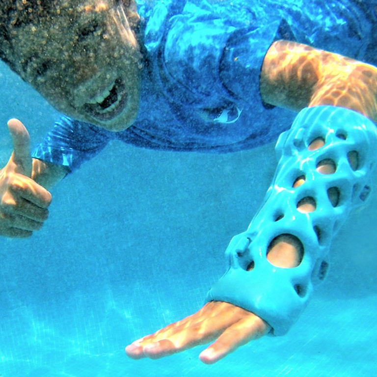 Child swimming underwater with 3D printed cast