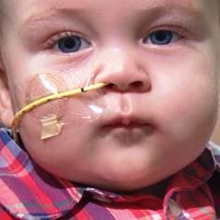 A close-up of a baby with a tube coming out of his nose.