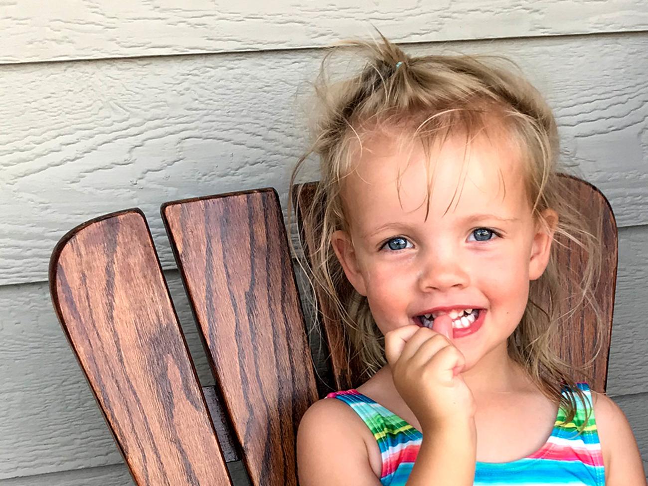 Cdh Diagnosis After Birth Children S Hospital Colorado