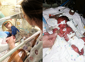Side by side pictures of Kendall and Danika at Children's Hospital Colorado being treated for Twin-to-Twin Transfusion Syndrome.