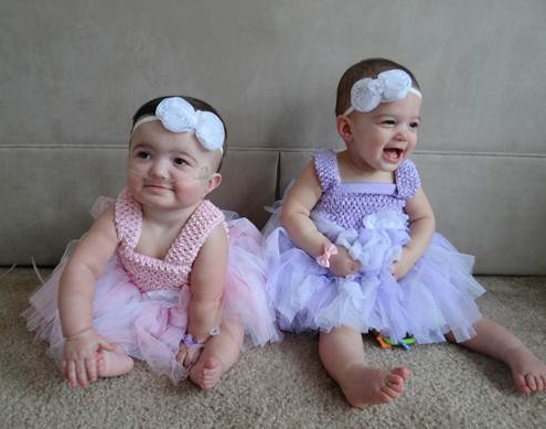 Two TTTS twin girls is a pink and blue dress.