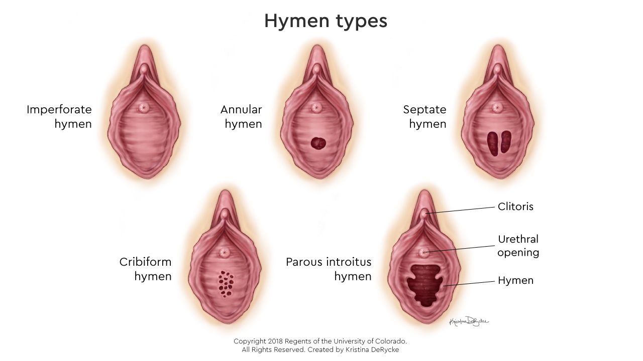 What Is an Imperforate Hymen