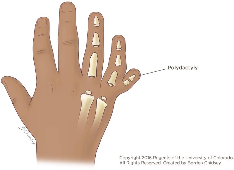 polydactyly | children's hospital colorado, Skeleton