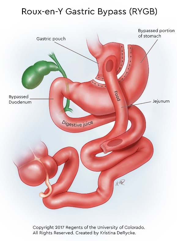 Graphic illustration showing the bypassed portion of the stomach and how food flows from the gastric pouch.
