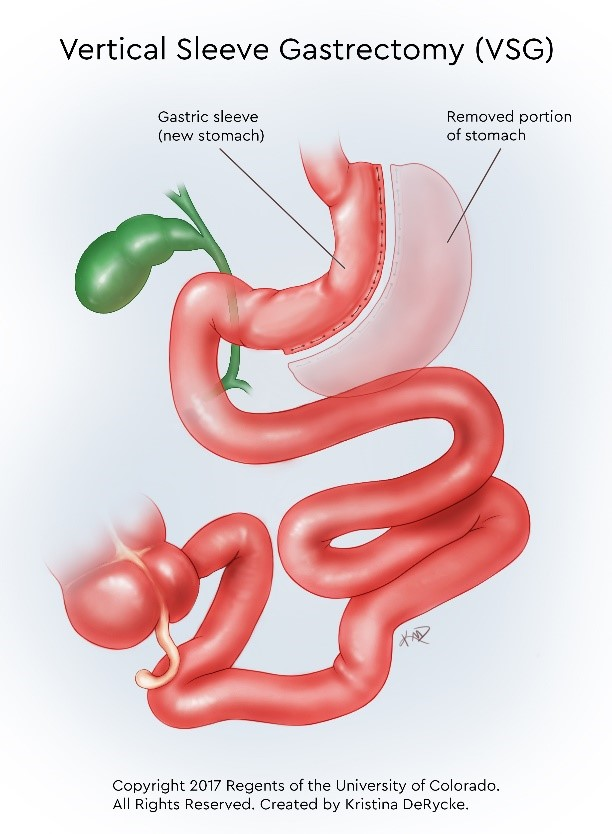 Graphic illustration showing the removed portion of the stomach and how the gastric sleeve becomes the new stomach.