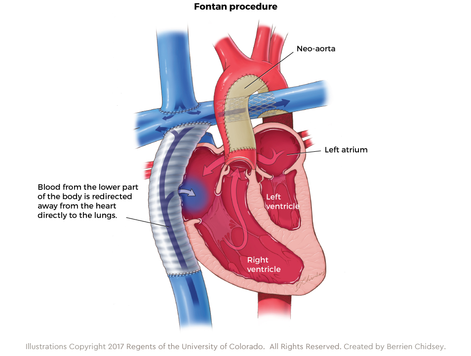 Graphic showing the Fontan procedure for HLHS