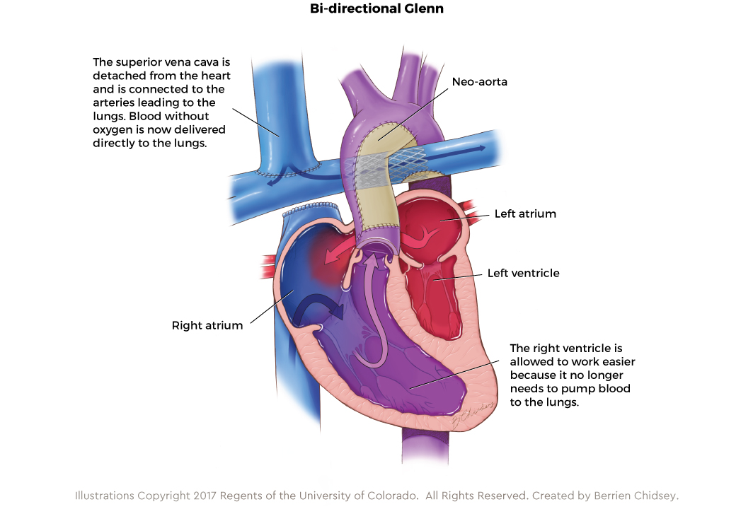 Graphic showing the bi-directional Glenn procedure for HLHS