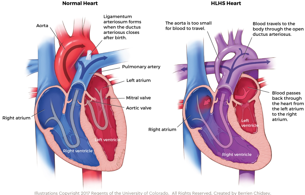 Graphic showing anatomy of a normal heart compared to the anatomy of an HLHS heart