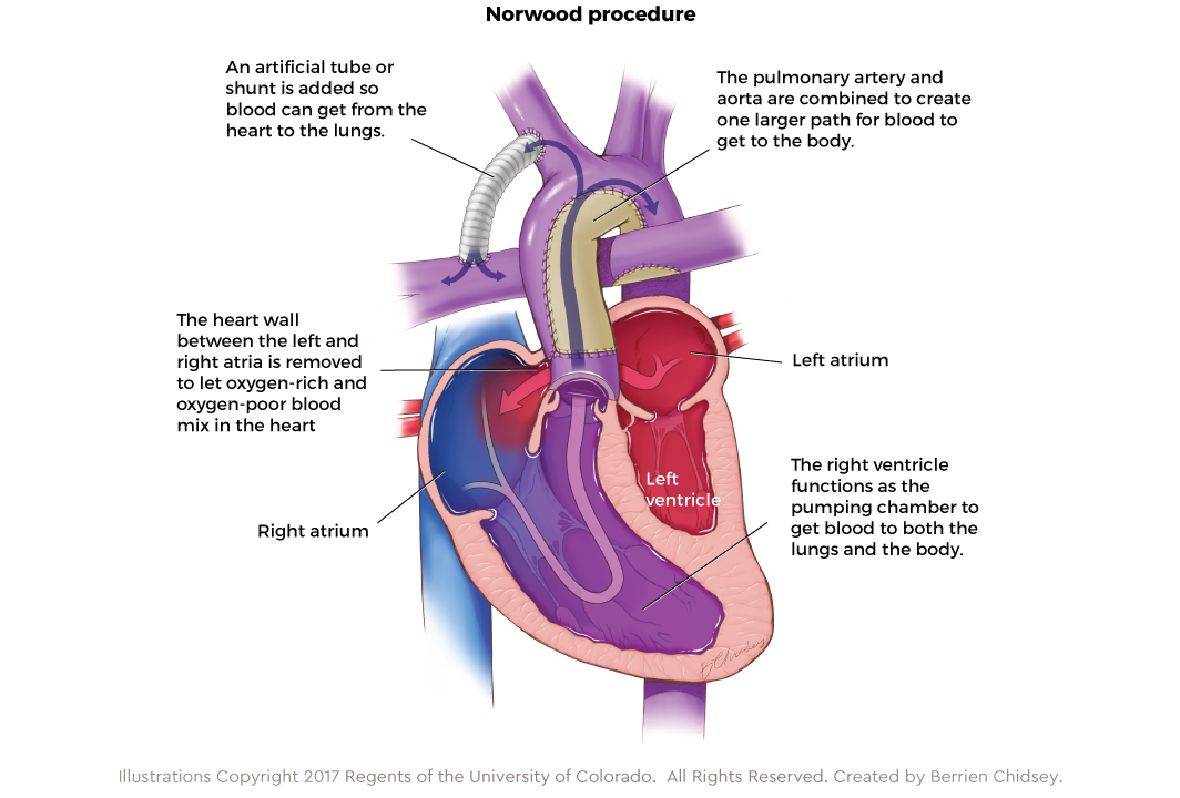 Graphic showing the Norwood procedure for HLHS