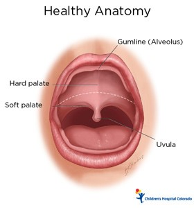 An illustration of a healthy palate at the roof of the mouth with labels for the gumline, uvula, soft palate and hard palate.