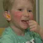 Little boy with cochlear implant