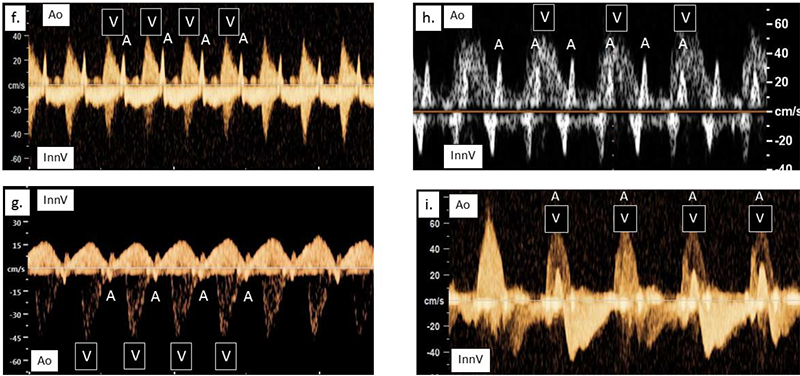 Four graph-like images where there is a y-axis of cm/s labeled from -100 to 40 and yellowish waves along x-axis each portraying different fetal heart rhythms.